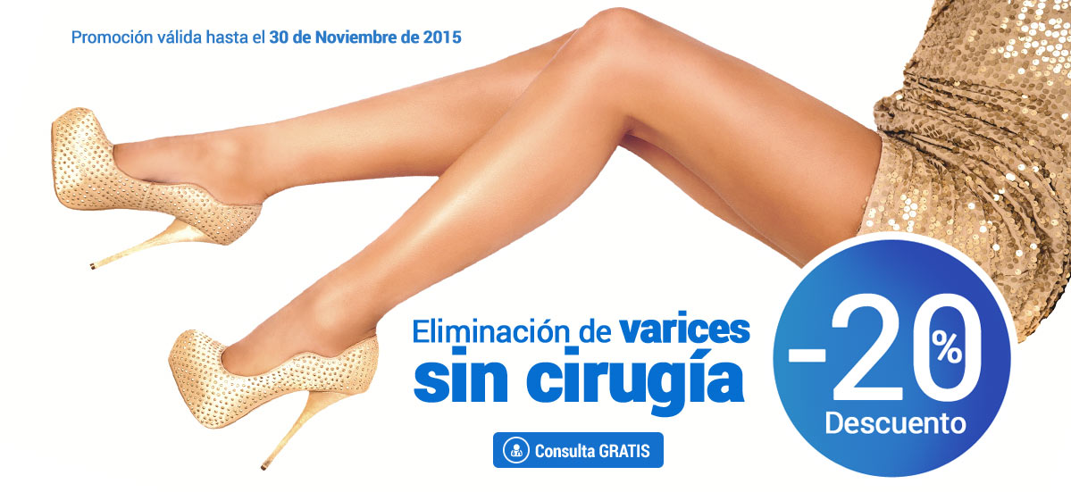 varices madrid eliminar varices sin cirugia